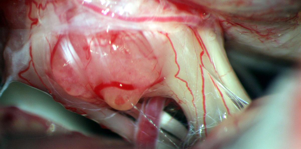 Hirntumorbehandlungen Gliom, Angiom, Meningeom